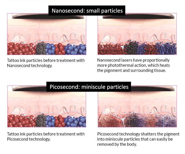 laser pikosekundowy - działanie, usuwanie tatuaży