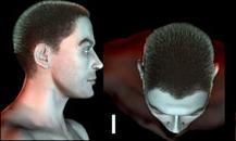 pigmentacja skóry głowy - etapy łysienia - a1