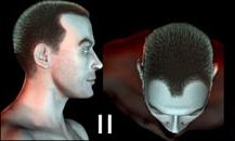 pigmentacja skóry głowy - etapy łysienia - 2