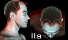 pigmentacja skóry głowy - etapy łysienia - a2