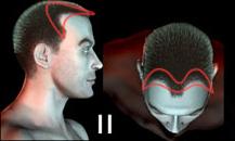 pigmentacja skóry głowy - etapy łysienia - a2z