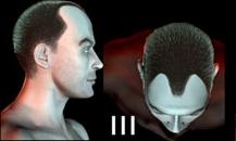 pigmentacja skóry głowy - etapy łysienia - 3
