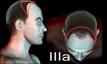 pigmentacja skóry głowy - etapy łysienia - 3a