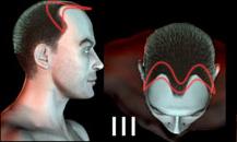 pigmentacja skóry głowy - etapy łysienia - a3