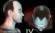 pigmentacja skóry głowy - etapy łysienia - a-4