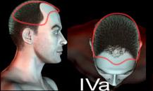 pigmentacja skóry głowy - etapy łysienia - a42