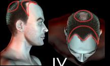 pigmentacja skóry głowy - etapy łysienia - 4a