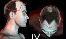 pigmentacja skóry głowy - etapy łysienia - 42