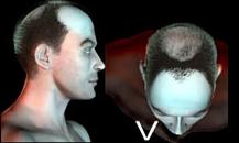 pigmentacja skóry głowy - etapy łysienia - 55