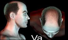 pigmentacja skóry głowy - etapy łysienia - 5a