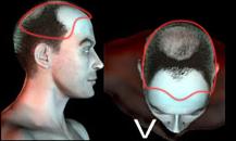 pigmentacja skóry głowy - etapy łysienia - 5
