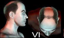 pigmentacja skóry głowy - etapy łysienia - 6a