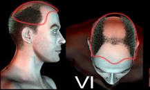 pigmentacja skóry głowy - etapy łysienia - 6