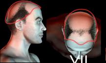 pigmentacja skóry głowy - etapy łysienia - 7