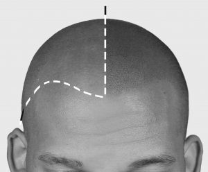 pigmentacja skóry głowy - mikropigmentacja skalpu przed i po