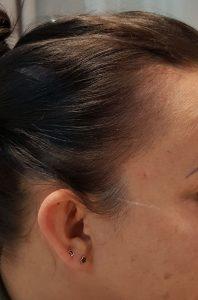 Pigmentacja skóry głowy w zagęszczaniu włosów - po zabiegu