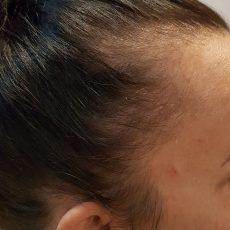 Pigmentacja skóry głowy w zagęszczaniu włosów - przed zabiegiem